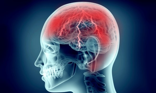Ból głowy u góry czaszki - przyczyny, źródła i leczenie bólów czaszki