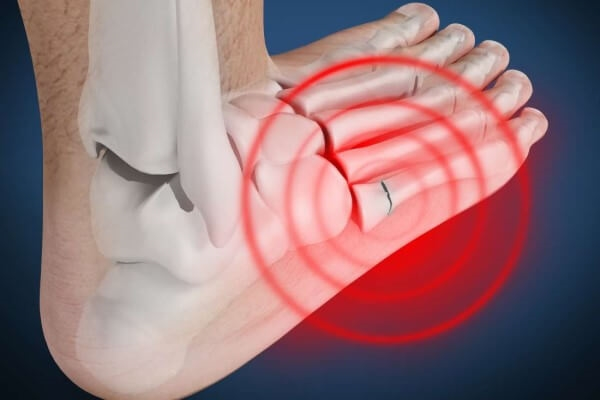 Ból śródstopia - przyczyny i leczenie, gdy czujemy ból w śródstopiu